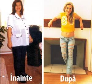 Regim de slabire nutritionist